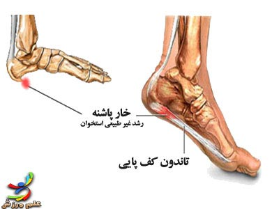 heel_spur_diagram