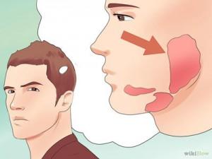 Mumps-Symptoms