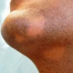 ریزش موی سکه ای/دکتر عطا انصاری
