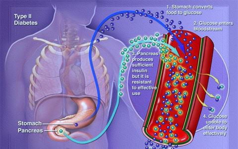دیابت نوع دوم/ دکتر عطا انصاری